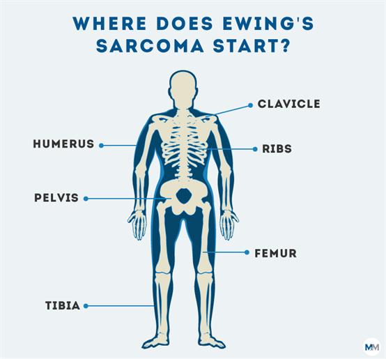 Sarcoma cancer healing - Hpv virus en zwanger worden